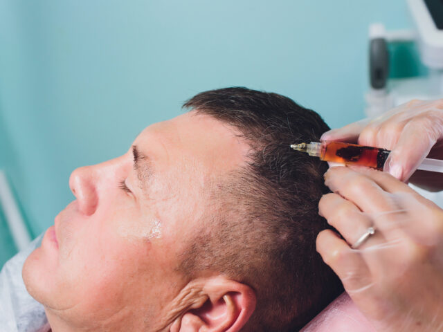 https://estetimeclinic.com/wp-content/uploads/2021/03/treatment-baldness-with-beauty-injections-cosmetologist-hands-gloves-make-subcutaneous-injection-plasmalifting-male-patient-640x480.jpg